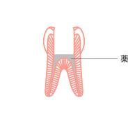 神経を摘出する一種の外科治療